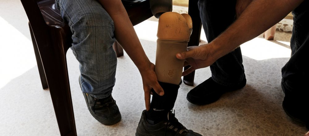 12 year old Mohammad Abd el Aal, in Lebanon, lost one leg, and his arm from a cluster bomb. Cluster Munition Coalition/Flickr.