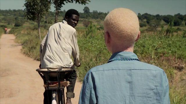Albino activist Josephat Toner travels around Tanzania to work for the human rights of albinos.