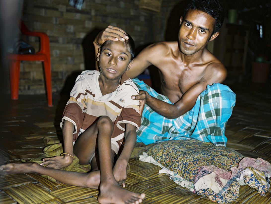 'Father holding polio-stricken son' - Rohingya also have stringent restrictions placed on their freedom of movement and access to amenities such as education, hospital and medical assistance.